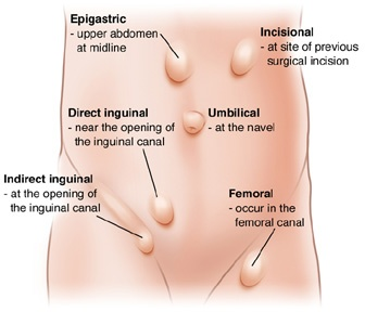 HerniasType